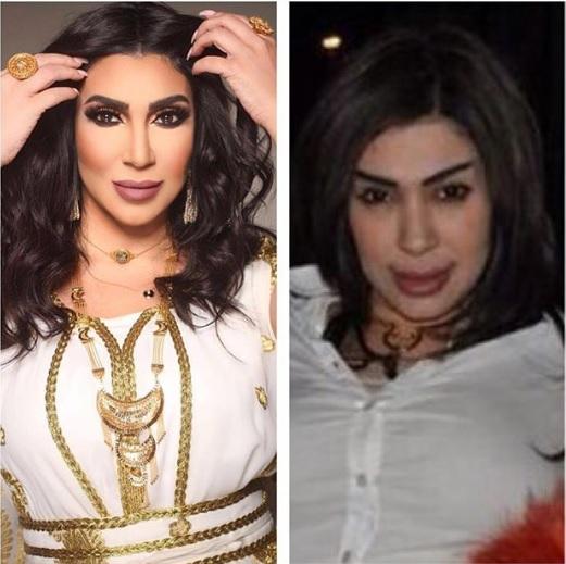 فاطمة عبد الرحيم قبل وبعد