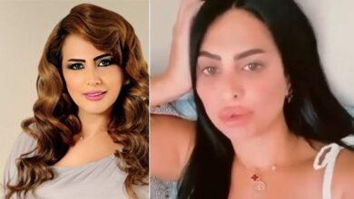 Photo of سوسن هارون تتعرض للانتقادات بعد إجراء عملية تجميل جديدة! (فيديو)